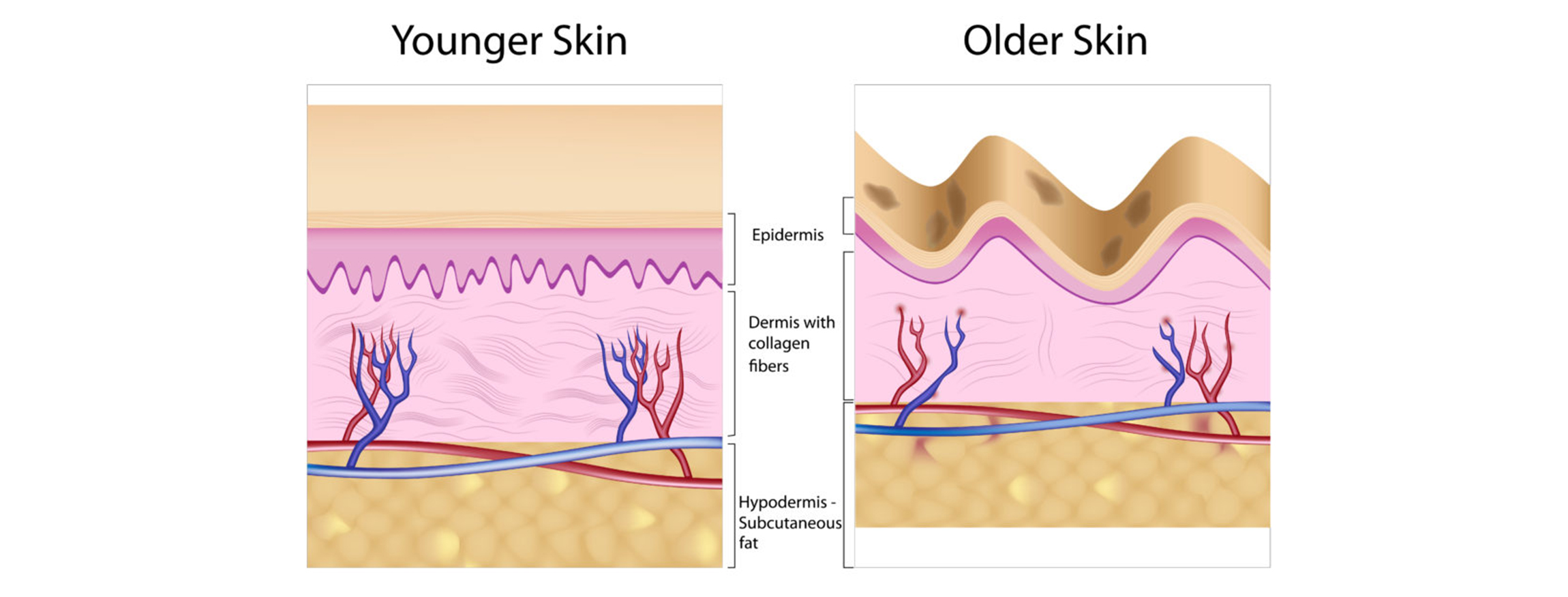The natural signs of ageing skin