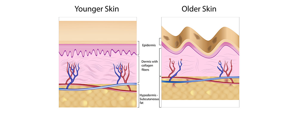 What is skin ageing